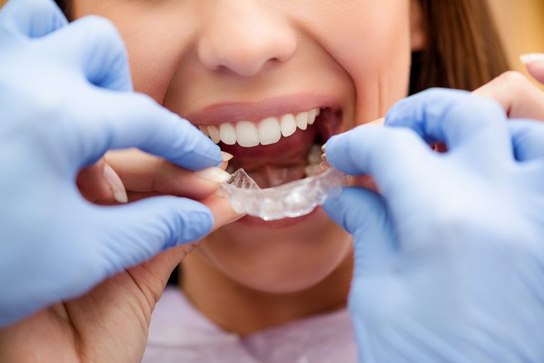 seo for orthodontists
